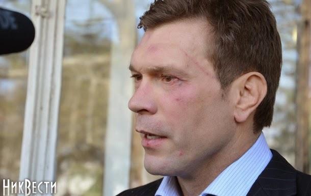 Олега Царьова побили в Миколаєві