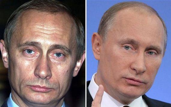 Путін, ботокс