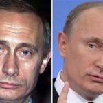 В рамках нових санкцій ЄС та США зупиняють поставку ботокса в Росію